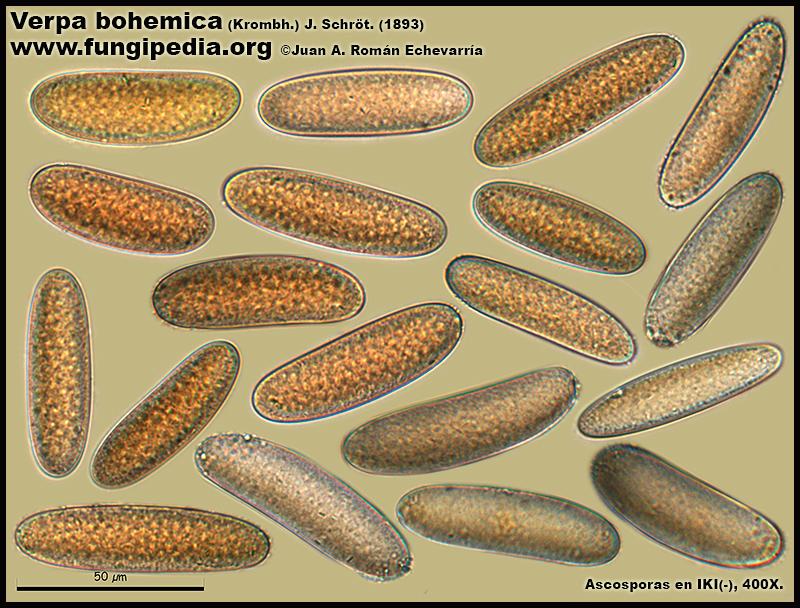 Verpa_bohemica_Microscopia_Microscopy12.jpg