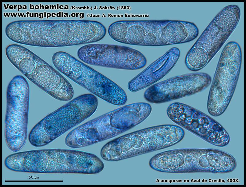 Verpa_bohemica_Microscopia_Microscopy19.jpg
