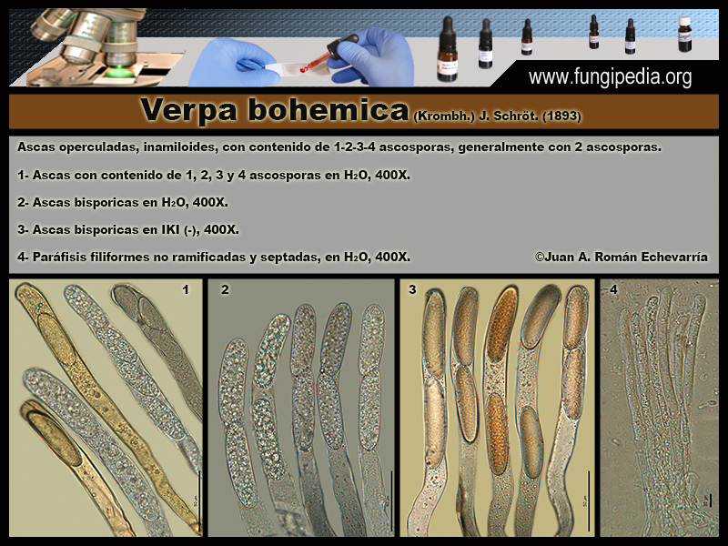 Verpa_bohemica_Microscopia_Microscopy3.jpg