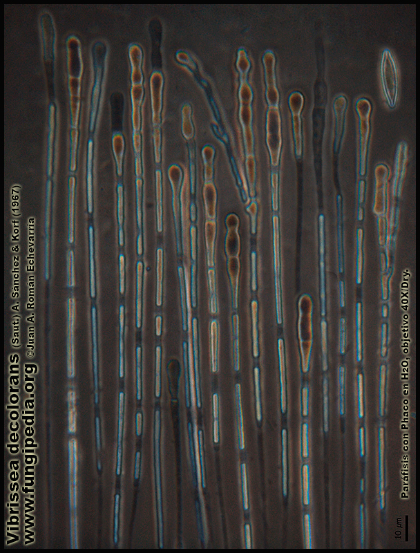 Vibrissea_decolorans_Microscopia_Microscopy10.jpg
