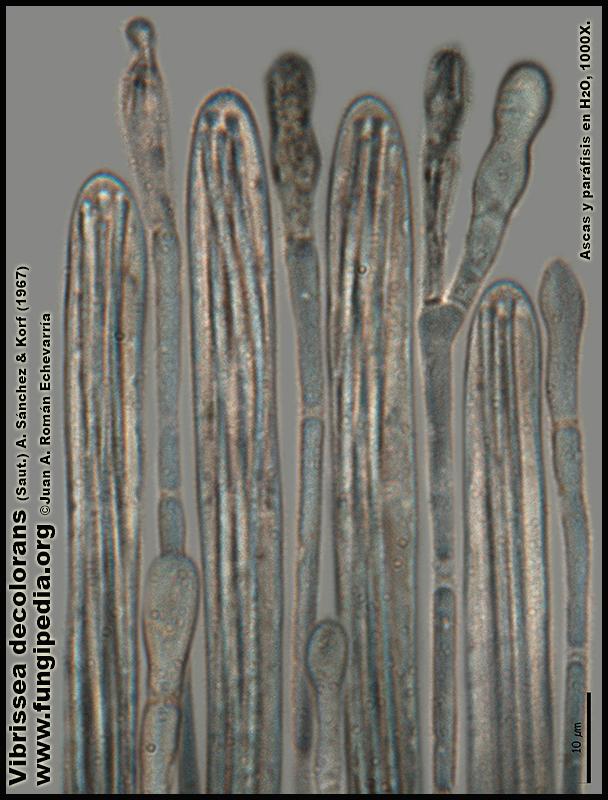 Vibrissea_decolorans_Microscopia_Microscopy15.jpg