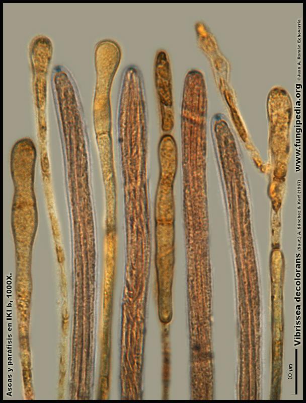 Vibrissea_decolorans_Microscopia_Microscopy17.jpg