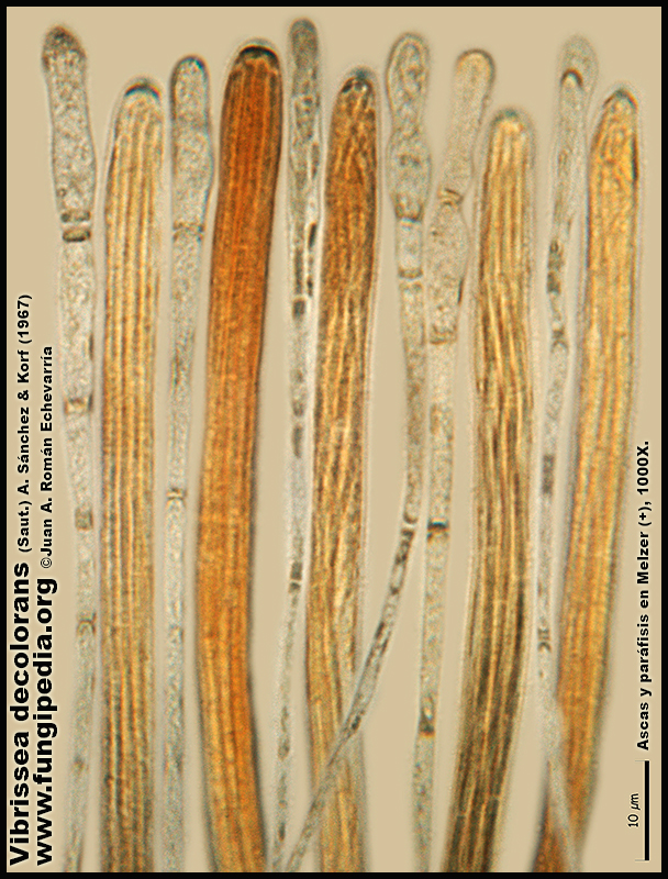 Vibrissea_decolorans_Microscopia_Microscopy18.jpg