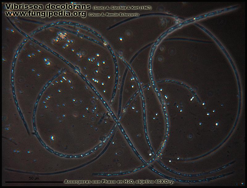 Vibrissea_decolorans_Microscopia_Microscopy8.jpg