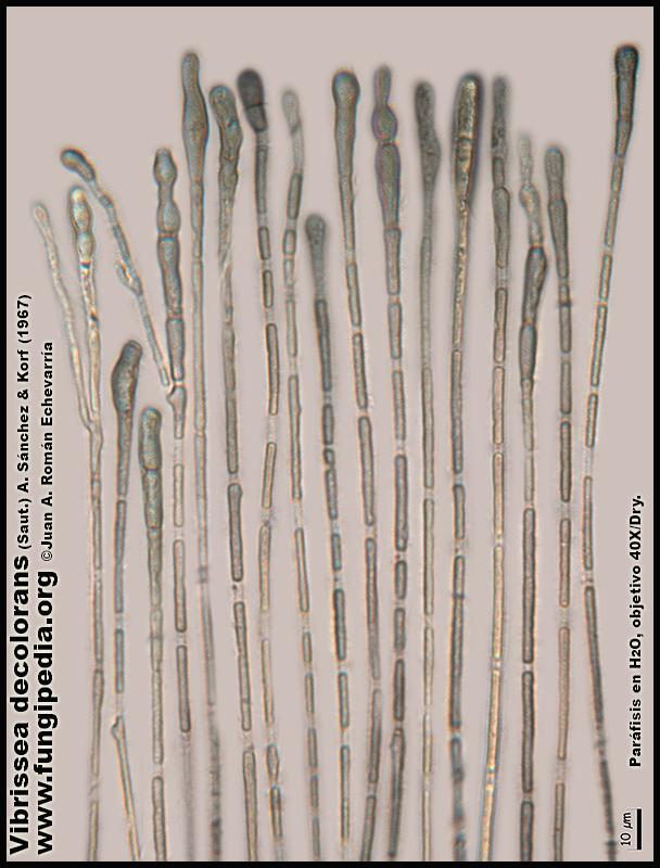 Vibrissea_decolorans_Microscopia_Microscopy9.jpg