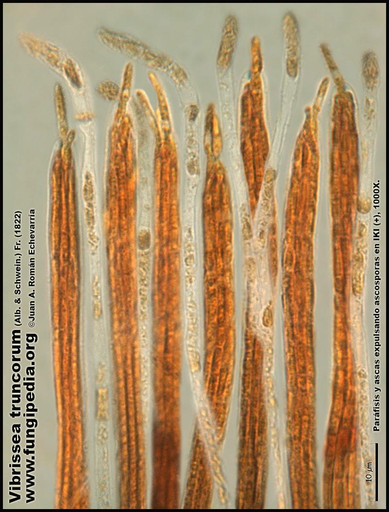 Vibrissea_truncorum_Microscopia_Microscopy10.jpg