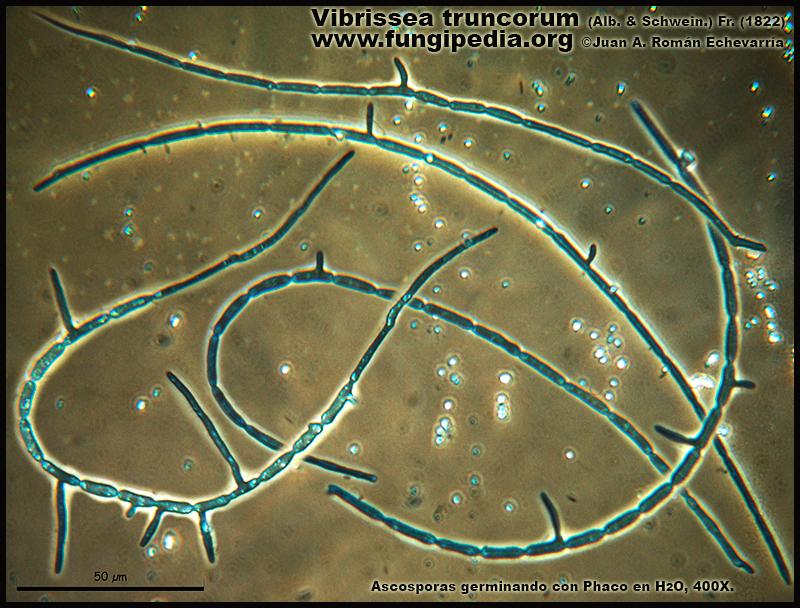 Vibrissea_truncorum_Microscopia_Microscopy5.jpg