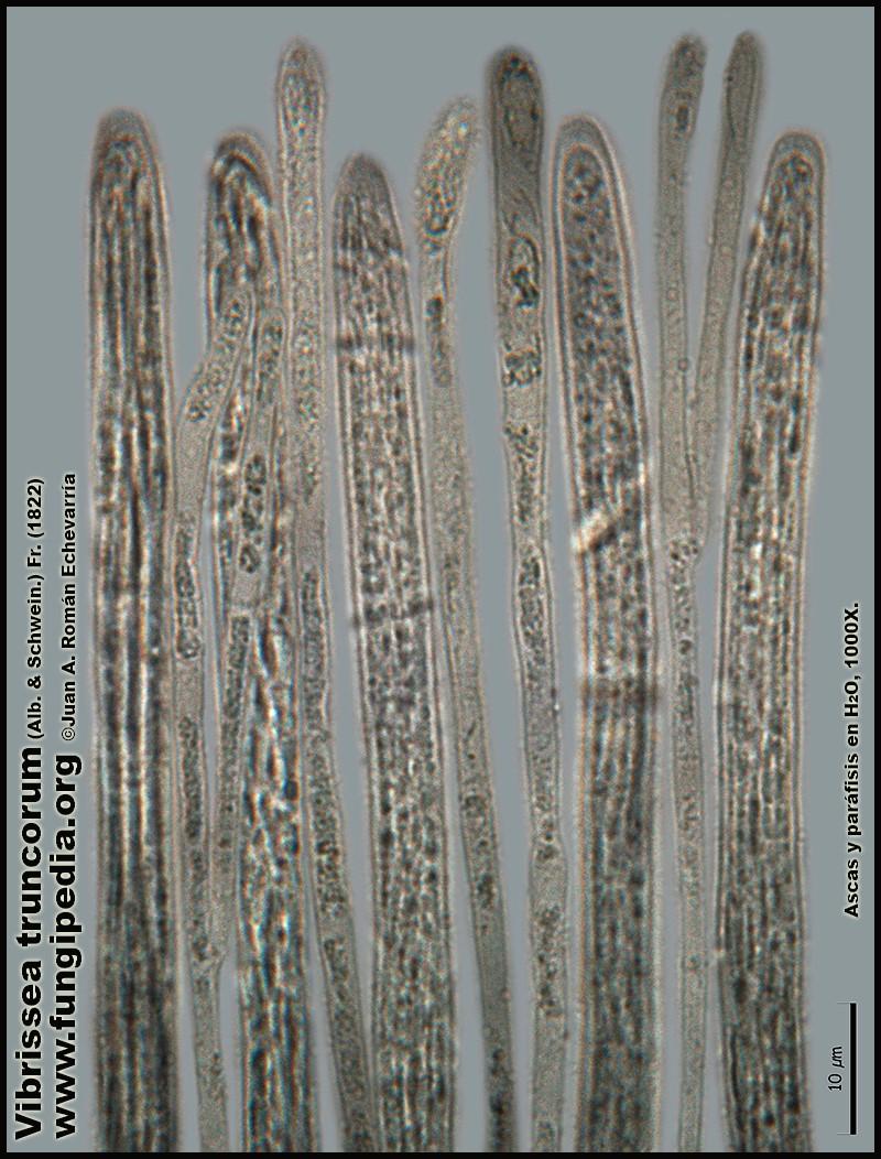 Vibrissea_truncorum_Microscopia_Microscopy8.jpg