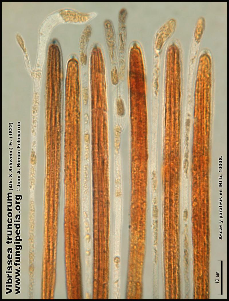 Vibrissea_truncorum_Microscopia_Microscopy9.jpg