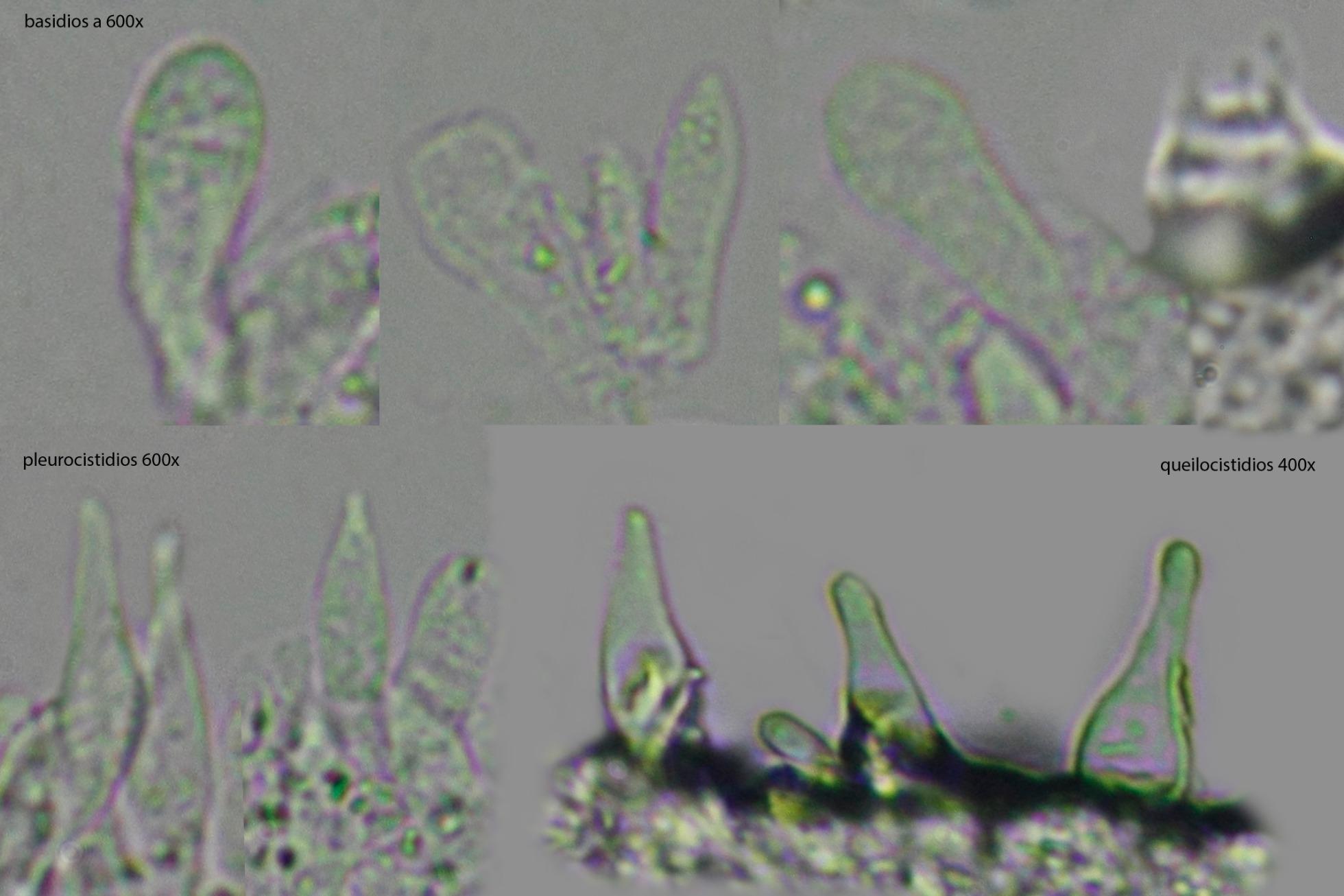 basidiosycistidios.jpg